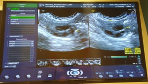 Newest ultrasound, notice the complete lack of any cysts, yay!
