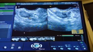 march 22 ultrasound no cyst